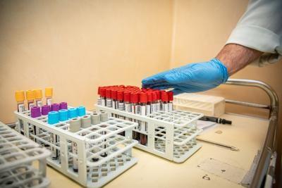 Coronavirus, 18 morti in Italia: è il numero più basso