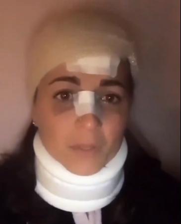 Ragazza massacrata da richiedente asilo tunisino sbarcato in Sicilia: le ha spaccato la faccia contro un palo di ferro