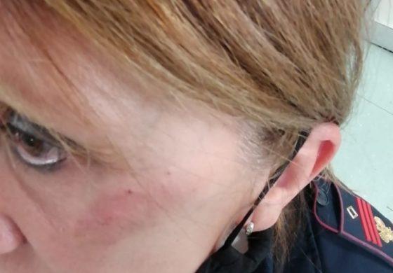 Dalla Polizia di Stato: a Vercelli un'agente presa a calci in faccia da una donna durante i controlli anticovid